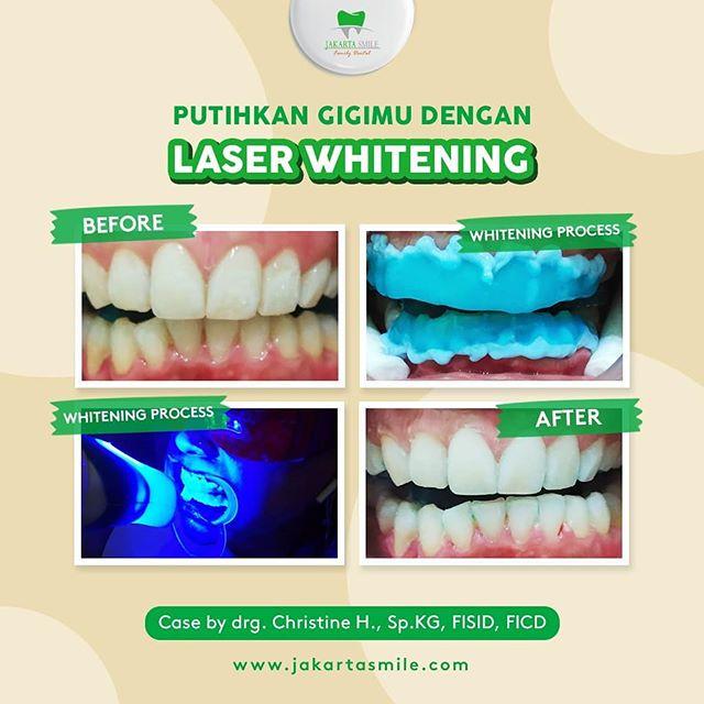 Jakarta Smile – Family Dental